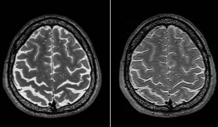 La struttura cerebrale nello spazio