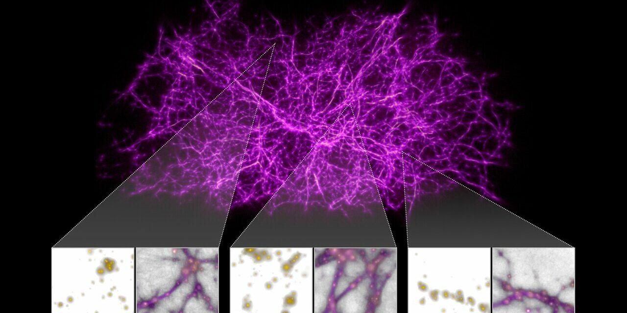 L'Universo in un microbo